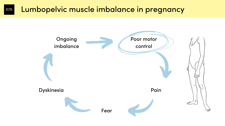 Lumbopelvic muscle imbalance in pregnancy